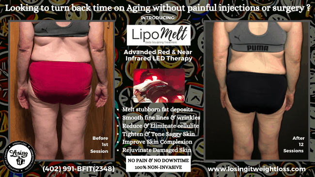 Amy LipoMelt Red Light and Near-Infrared Red-Light Therapy Back Fat Buttocks Elbows Thighs Reduce Cellulite Tighten Saggy Skin Remove Stubborn Fat Tighten and Tone Skin Decrease Fine Lines Reduce Wrinkles Melt Fat Away with Light Energy