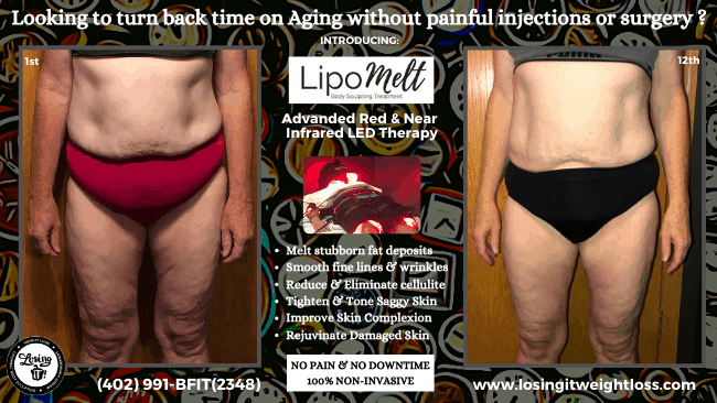 Amy LipoMelt Losing iT! Weight Loss Inches Lost Front Abs Thighs Cellulite Reduction Tighten and Tone Saggy Skin Rejuvenate Skin Decrease Fine Lines Reduce Wrinkles Remove Toxins