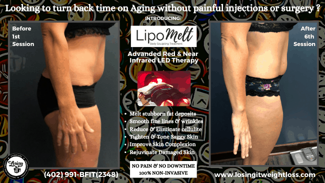 Marcia LipoMelt Thighs Losing iT! Weight Loss Reduce Cellulite Tighten Skin Tone and Trim