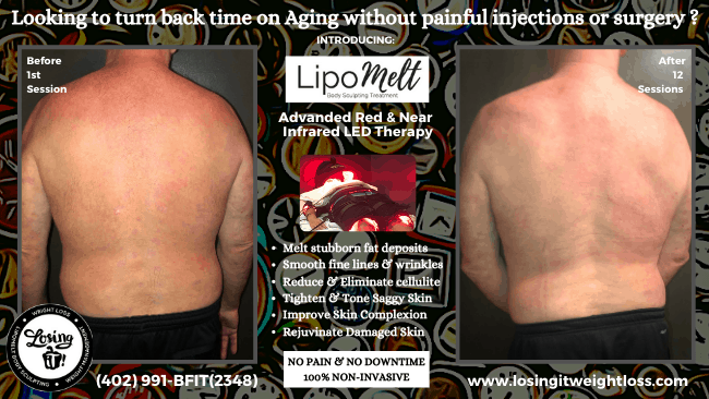 Mark LipoMelt Back Red Light Near-Infrared Therapy Microchip Technology Painless Non-Invasive