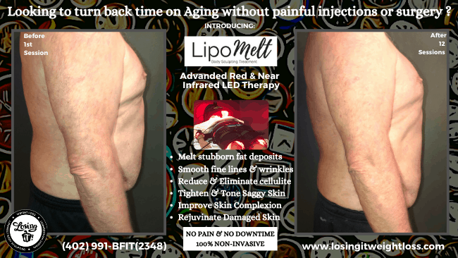 Mark Side LipoMelt Naturally Release and Remove Stubborn Fat Body Contouring