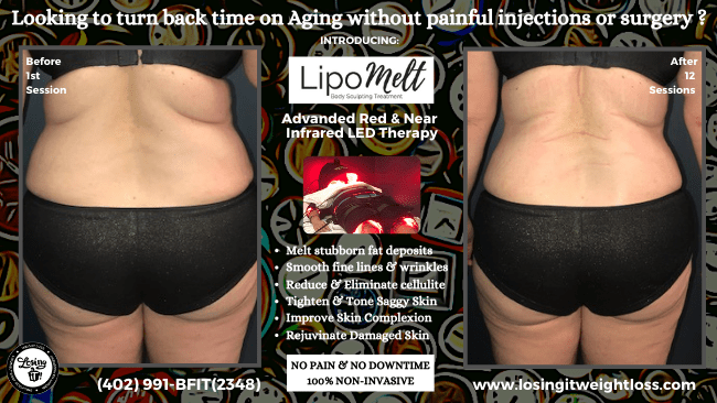 Mary LipoMelt Back Buttocks Back Fat Losing iT! Weight Loss Fat Loss Inches Lost Body Contouring Painless Microchip Technology