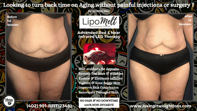 Mary LipoMelt Losing iT! Weight Loss Stomach Saggy Skin Stretch Marks Thighs Melt Fat Tighten Saggy Skin Non-Invasive, No Pain, Shed Inches, Rejuvenate Skin