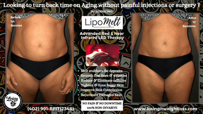 Micki front LipoMelt Losing iT! Red Light Near Infrared Light Therapy