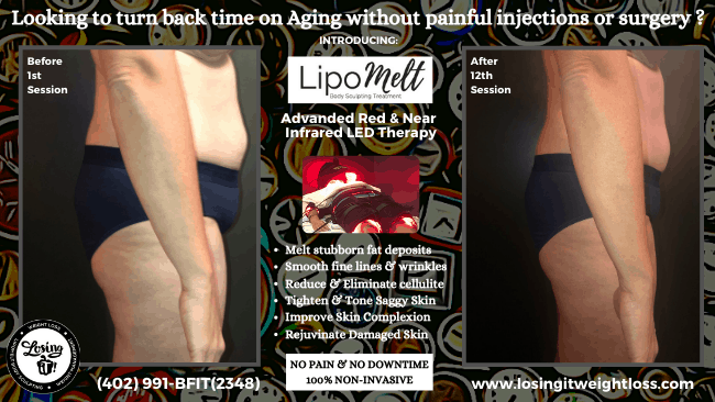 Stacey LipoMelt Losing iT! Weight Loss Side Belly Elbows Thighs Rejuvenate Skin Tighten Skin Tone Skin Reduce Cellulite Reduce Fat Deposits Buttocks Saddle Bags Light Therapy
